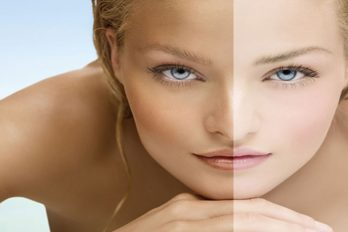 5 best natural recipes for skin lightening