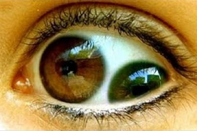 5 images to verify if you have a healthy vision
